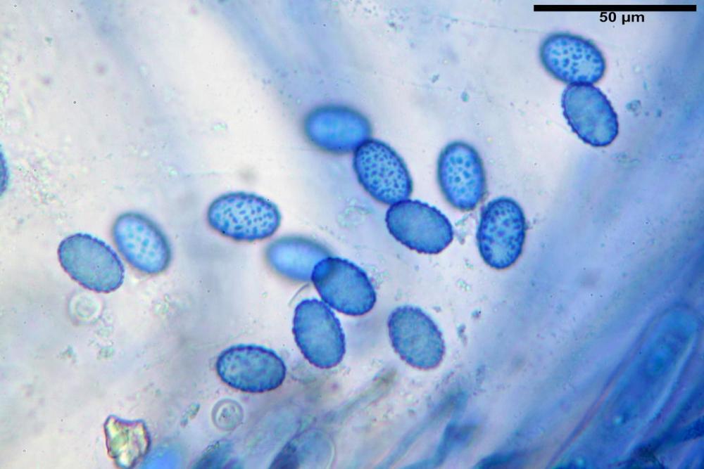 Scutellinia subhirtella 7482 52.jpg