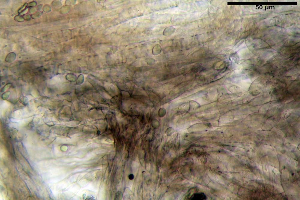 Pileipellis olivascens 5843 secco KOH 2%.JPG