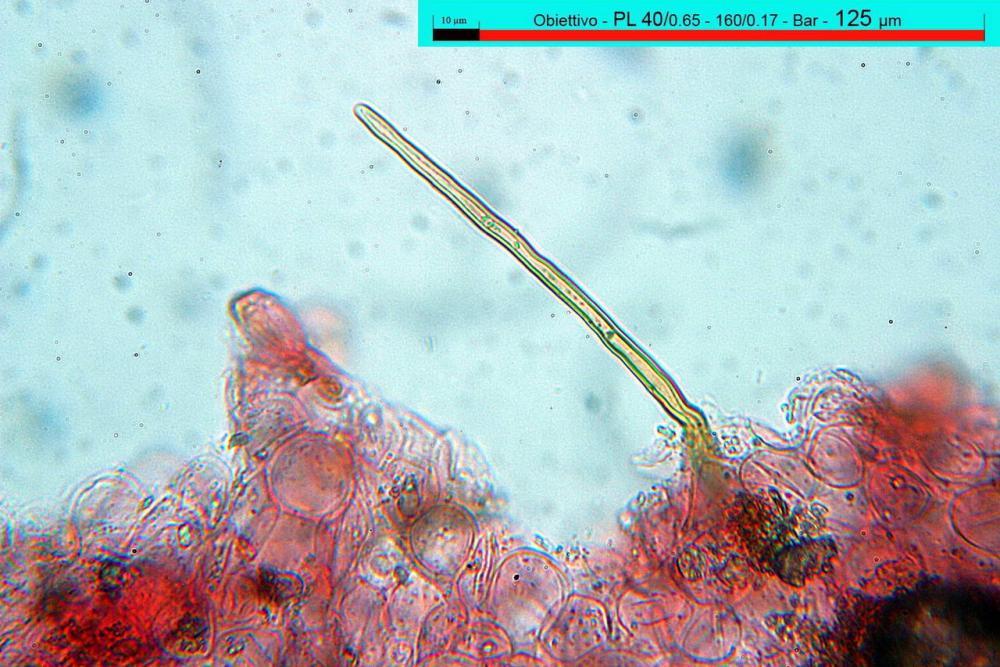 parasola auricoma pileipellis setae 15.jpg
