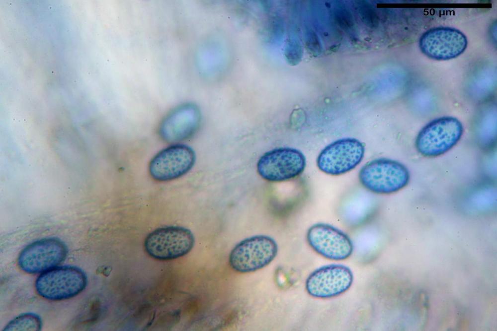 Scutellinia subhirtella 7482 45.jpg