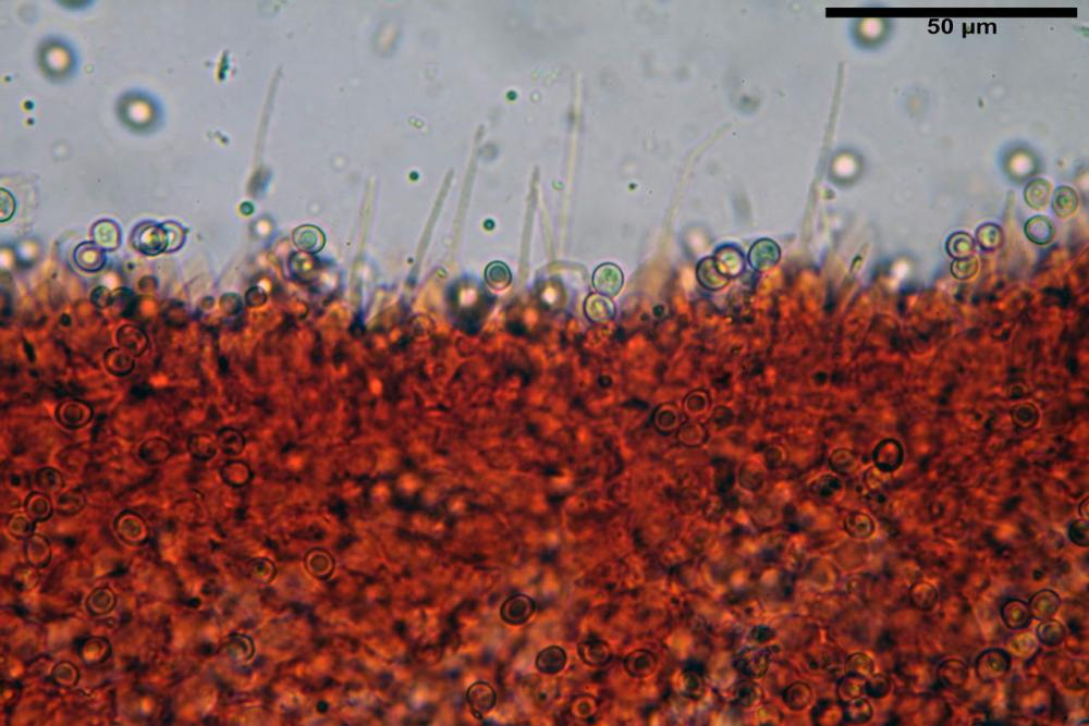 Pluteus thomsonii cheilocistidi (2).jpg
