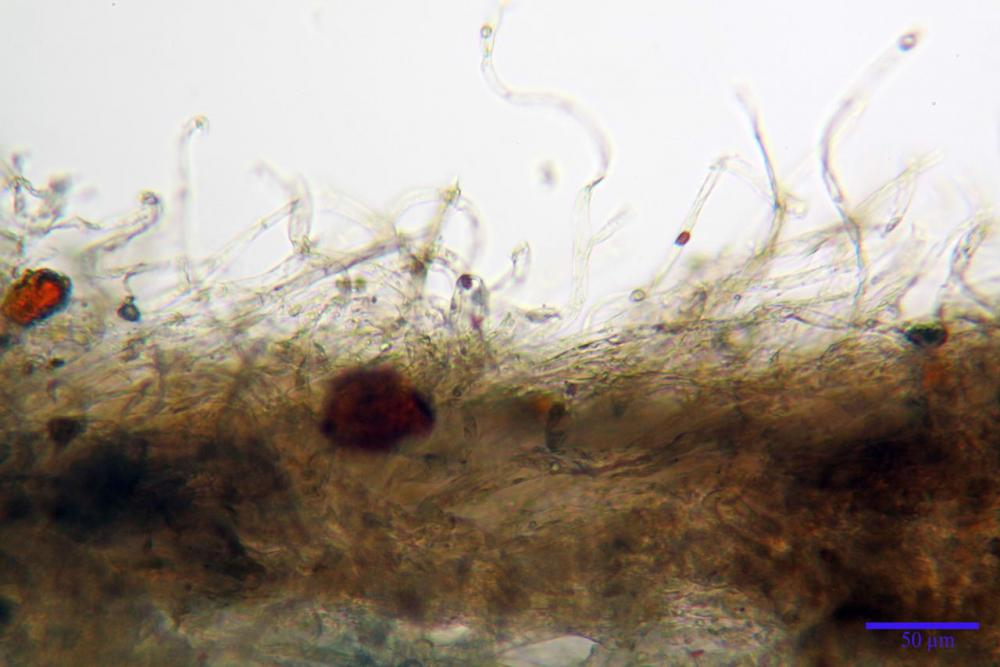 agaricus bresadolanus pileipellis.jpg