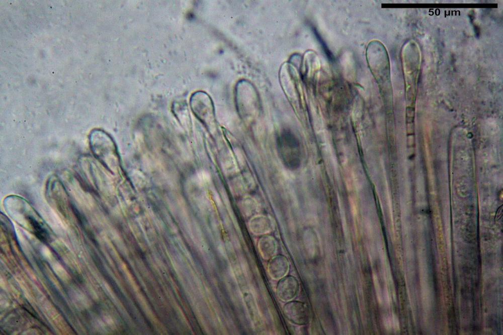 Scutellinia crinita 7493 39.jpg