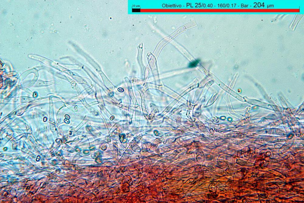 Stropharia coronilla pileipellis 02.jpg