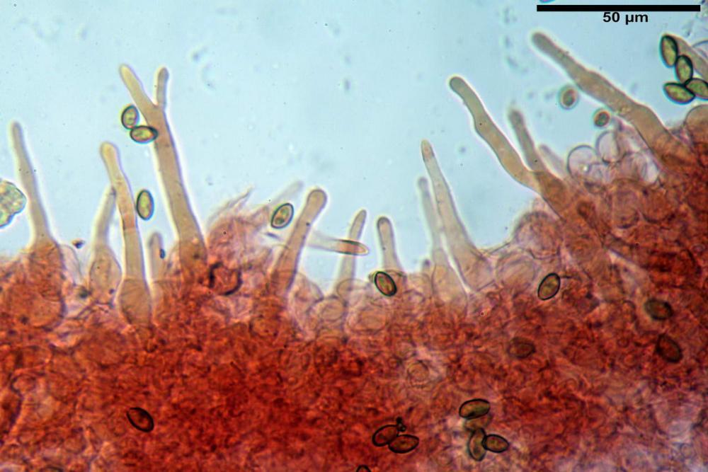 Pholiotina pygmaeoaffinis pileipellis pileocistidi.jpg