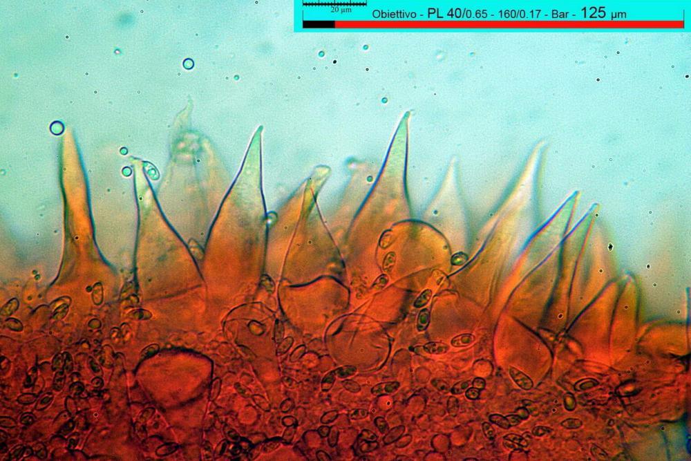 macrocystidia cucumis cheilocistidi.jpg