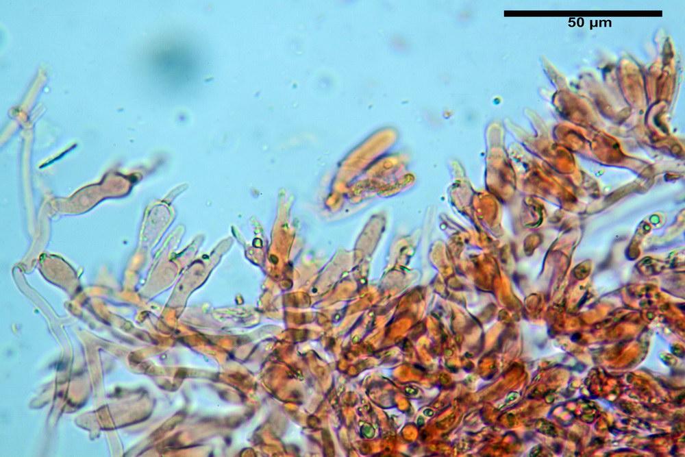 chaetocalathus craterellus 5169 17_resize.jpg