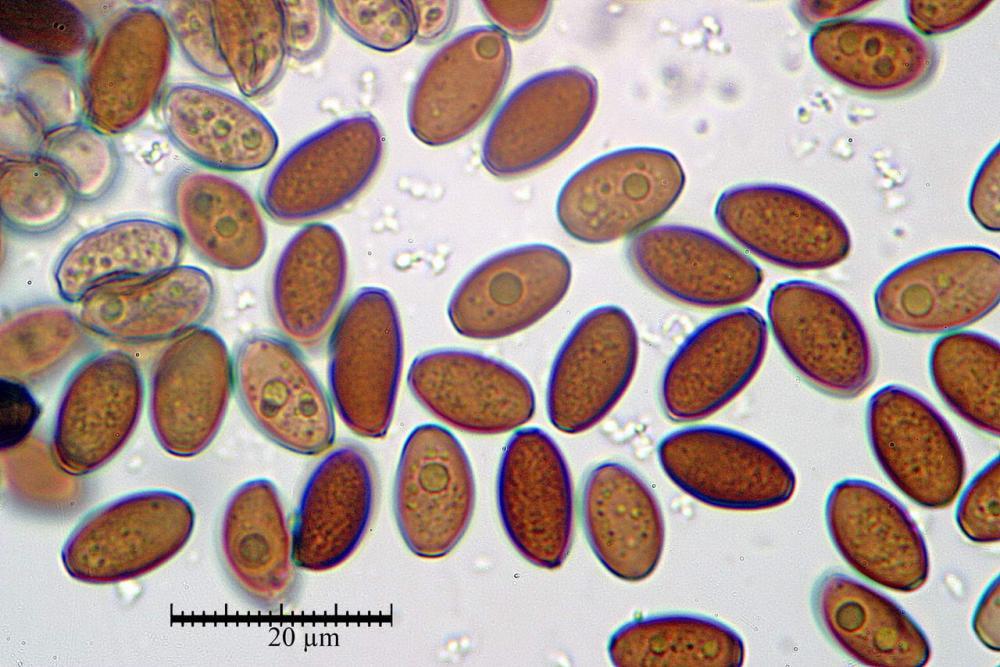Coprinopsis marcescibilis spore 05.jpg