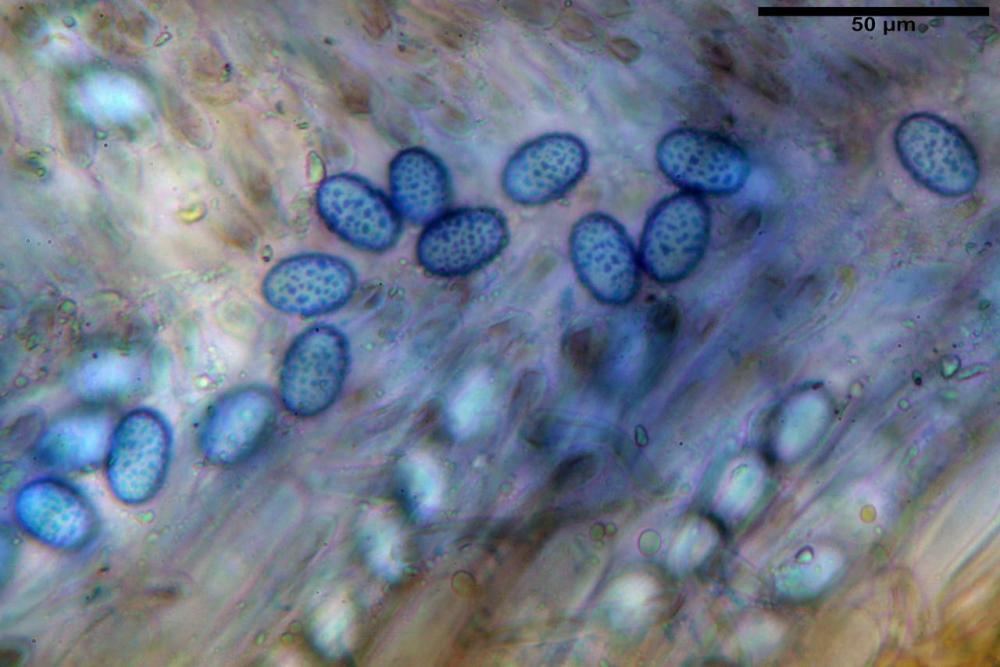 Scutellinia subhirtella 7482 49.jpg