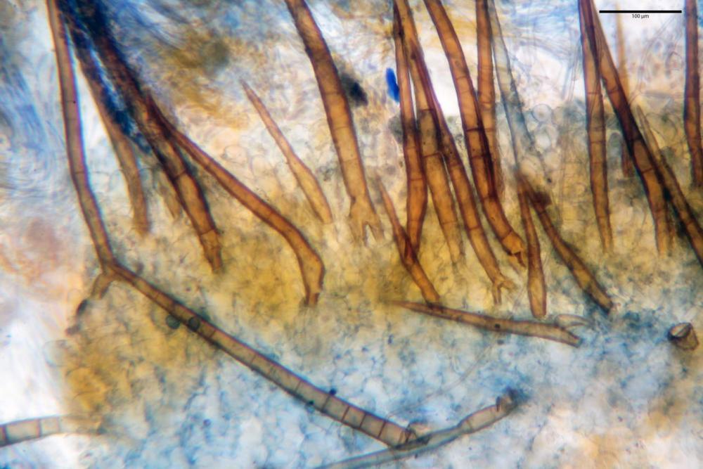 Scutellinia subhirtella 7482 16.jpg