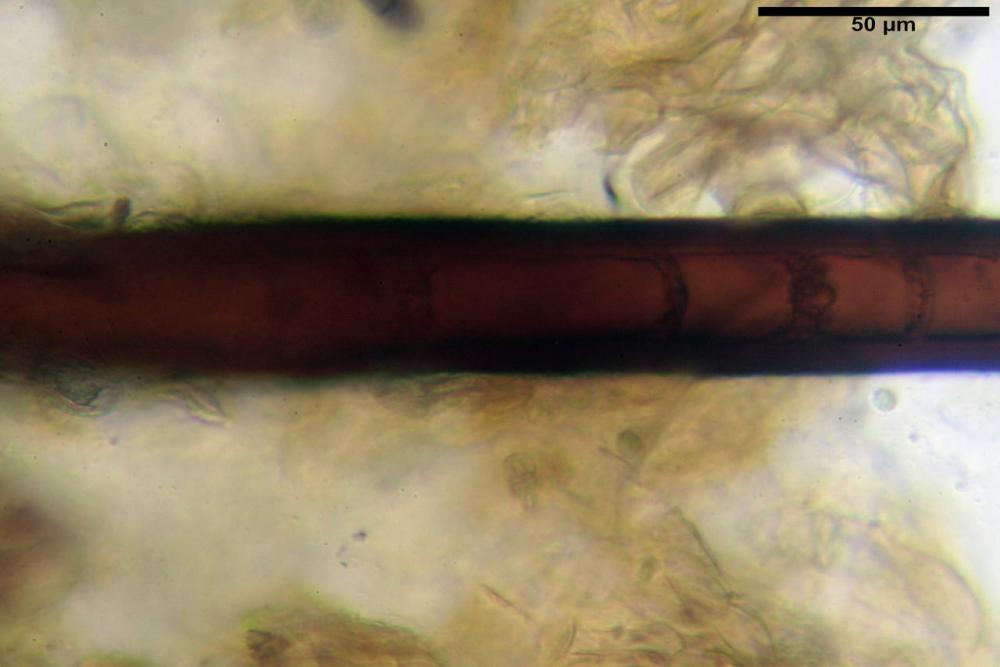 Scutellinia crinita 7493 29.jpg