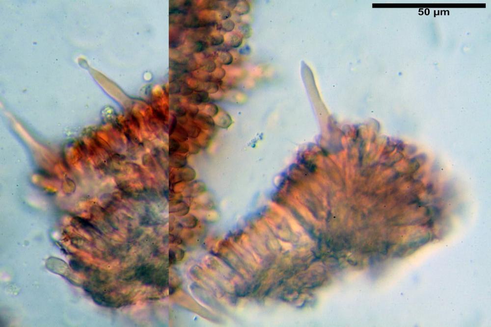 Mycenella bryophila var caesia cheilocistidi.jpg