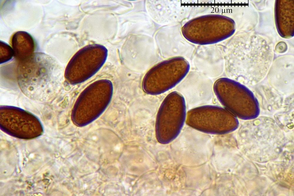 Parasola conopilus spore 07.jpg