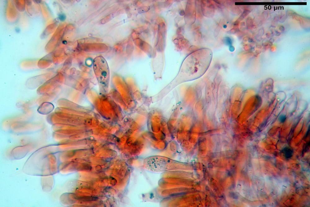 Pluteus thomsonii basidi e cheilocistidi.jpg
