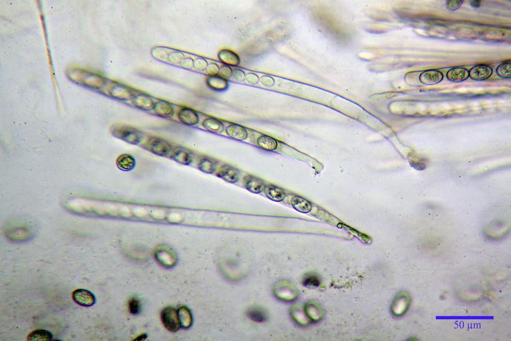 Scutellinia crinita 7493 36.jpg