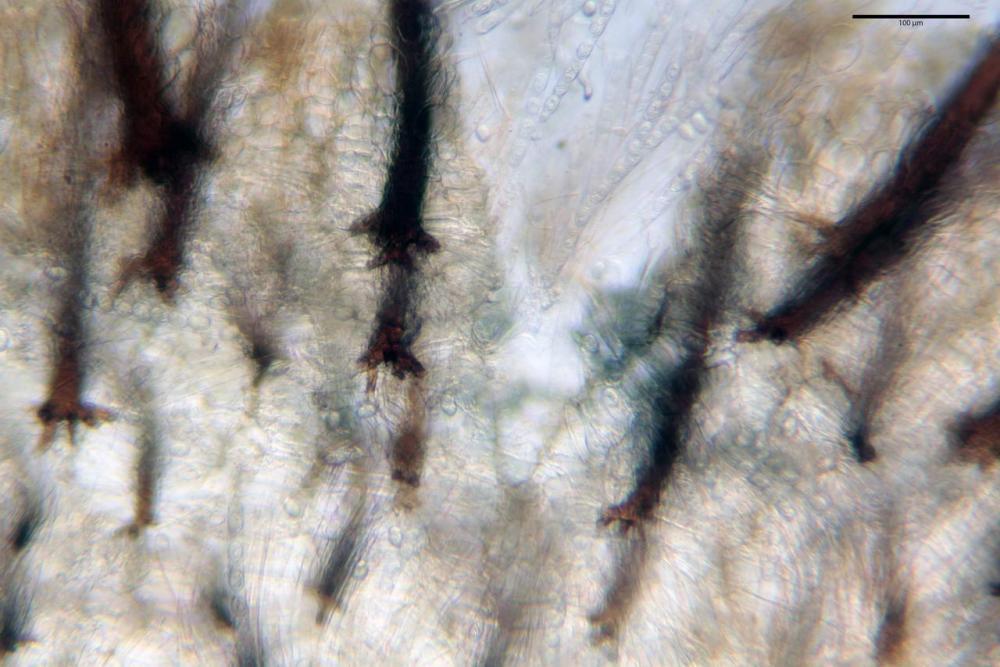 Scutellinia crinita 7493 27.jpg