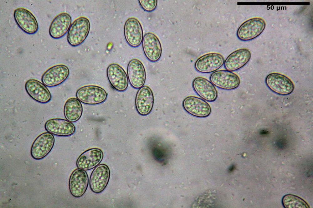 Scutellinia crinita 7493 48.jpg