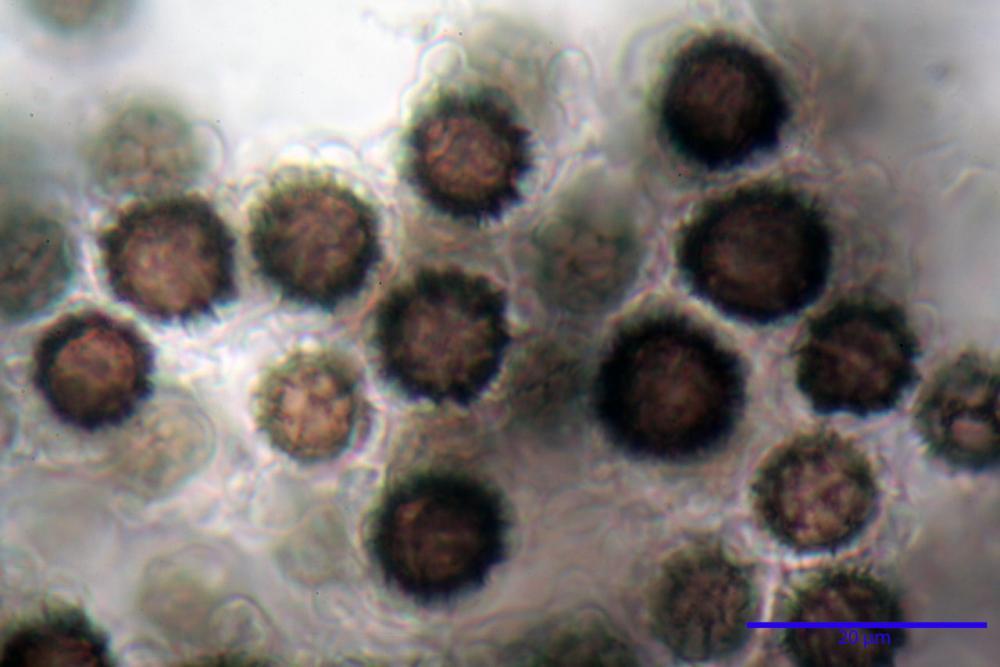 scleroderma citrinum 5366 32.jpg