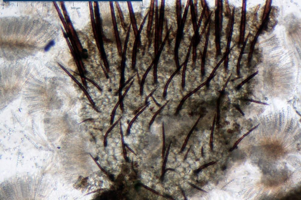 Scutellinia crinita 7493 25.jpg