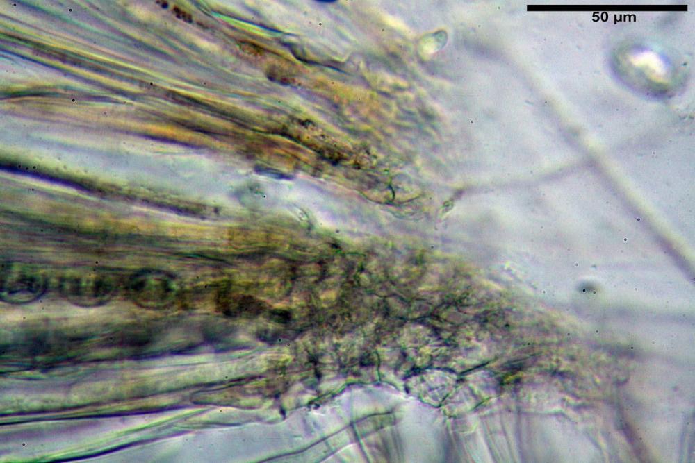 Scutellinia crinita 7493 35.jpg