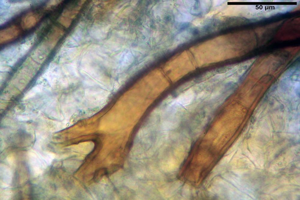 Scutellinia subhirtella 7482 17.jpg