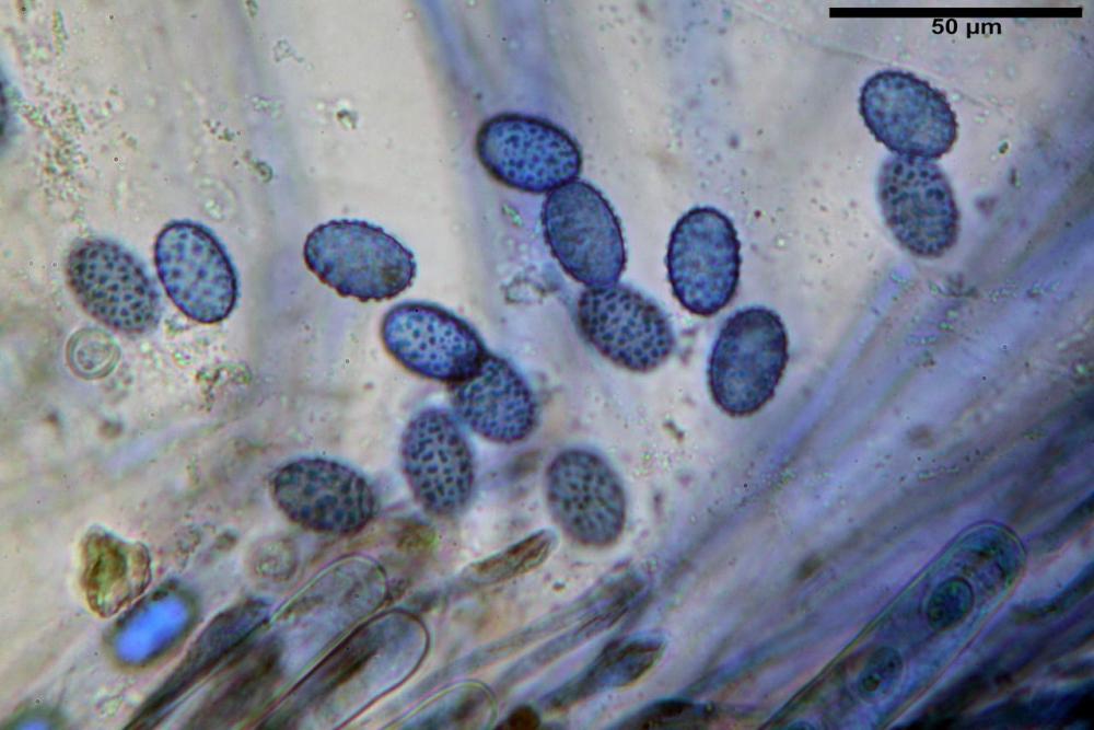 Scutellinia subhirtella 7482 41.jpg