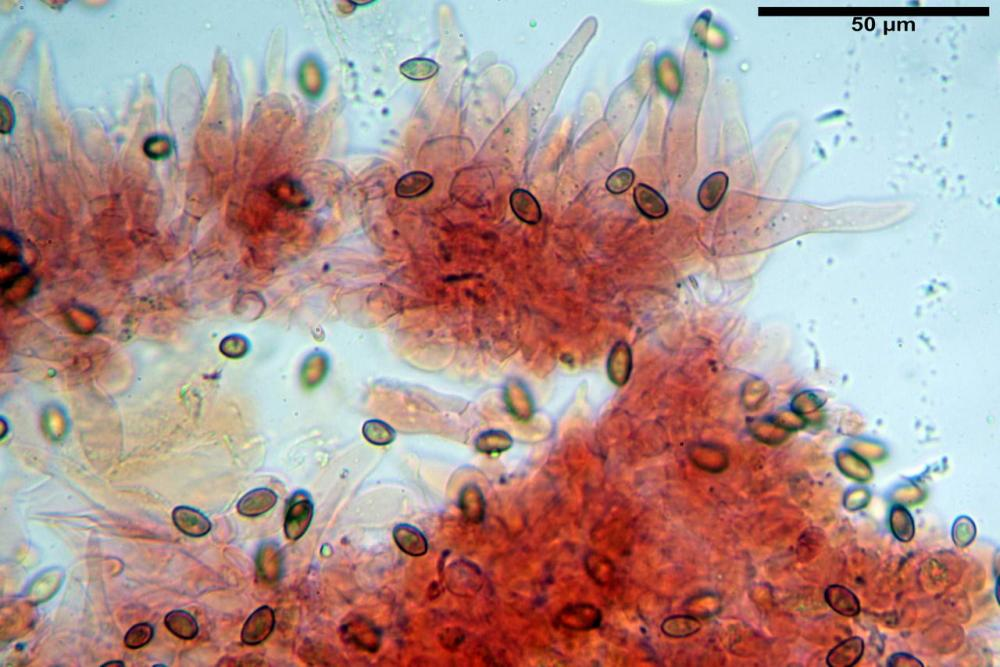 Pholiotina pygmaeoaffinis cheilocistidi.jpg