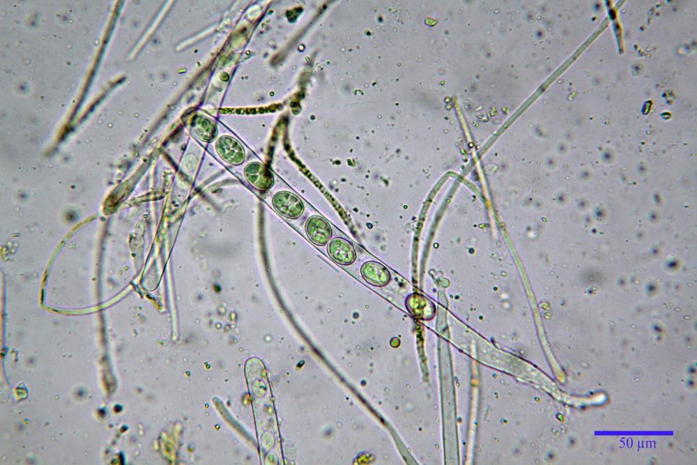 Scutellinia subhirtella 7482 31.jpg