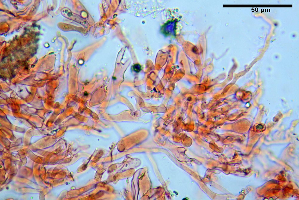 chaetocalathus craterellus 5169 22_resize.jpg