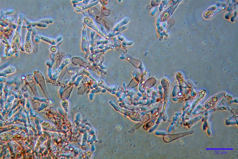 amanita ceciliae 13.jpg