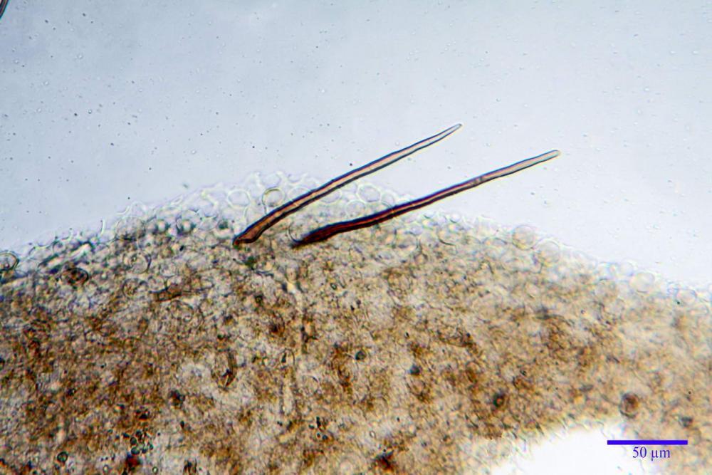 Parasola conopilus pileipellis setae 05.jpg