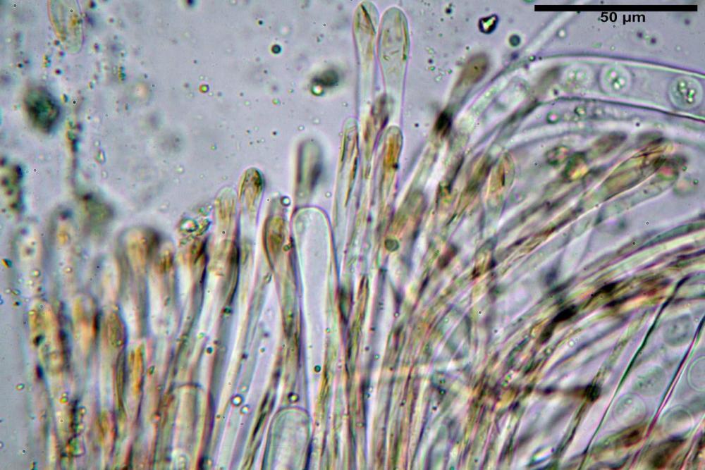 Scutellinia subhirtella 7482 37.jpg