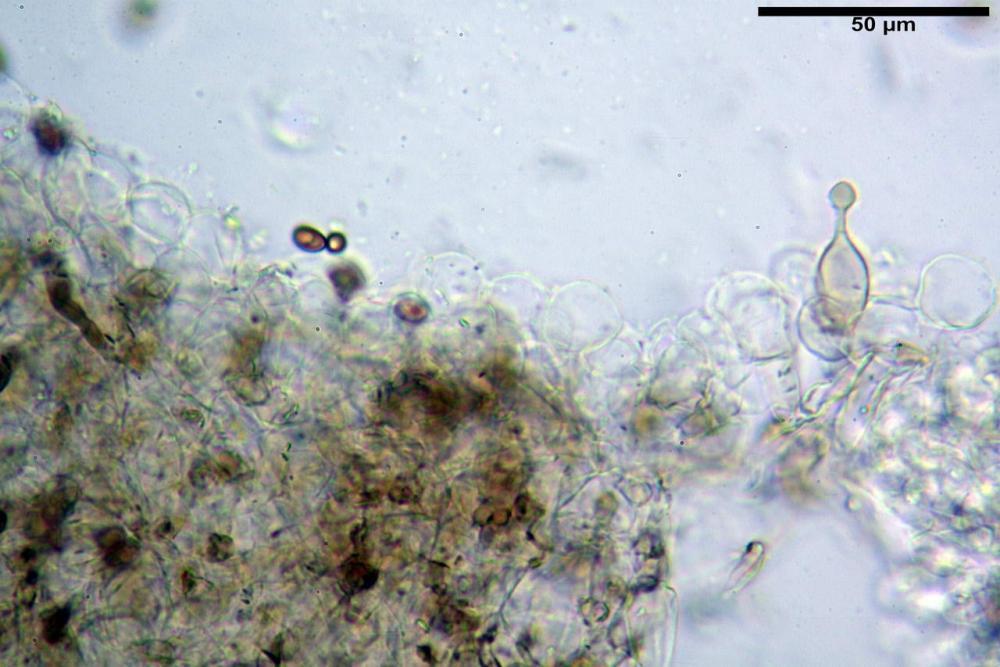 Conocybe macrocephala pileipellis 02 .jpg