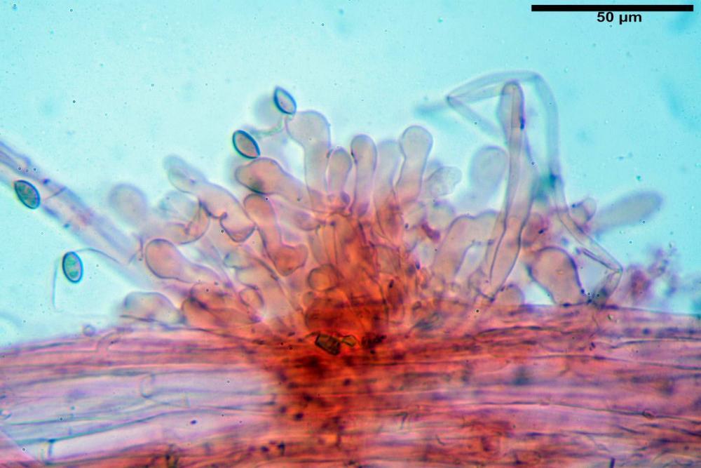 Pholiotina dasypus caulocistidi 04.JPG
