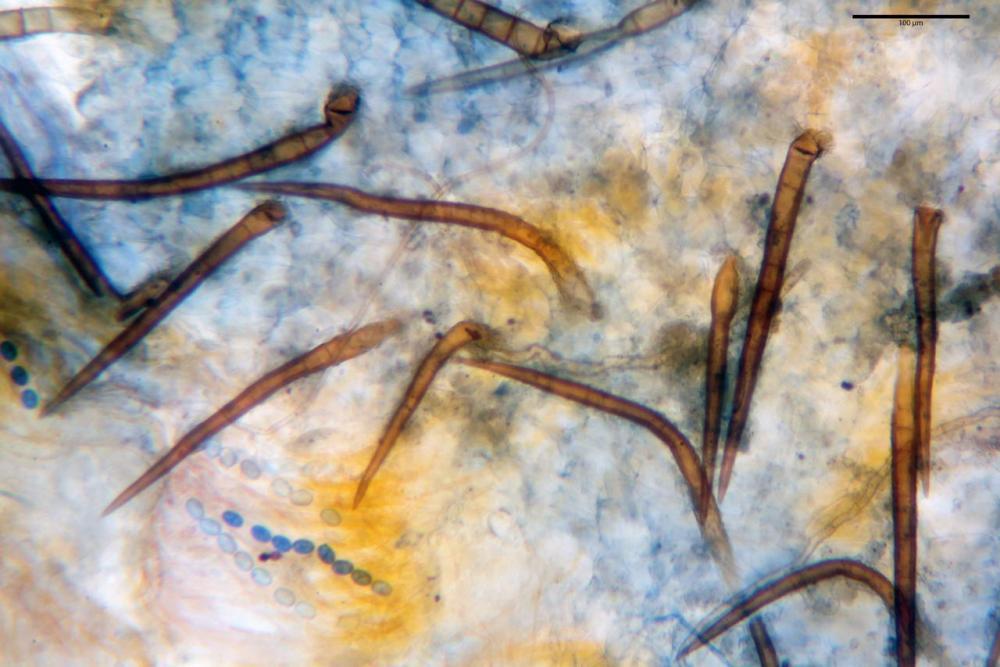 Scutellinia subhirtella 7482 25.jpg