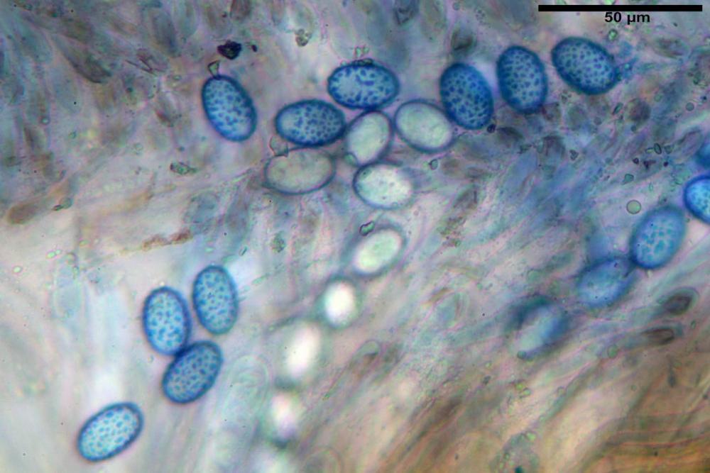 Scutellinia subhirtella 7482 46.jpg