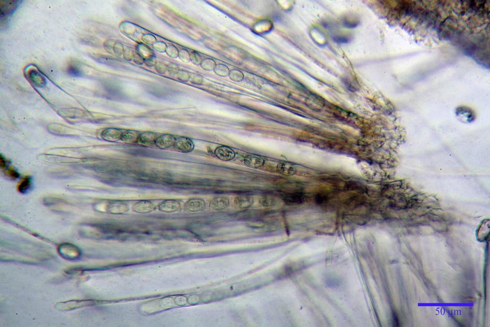 Scutellinia crinita 7493 34.jpg
