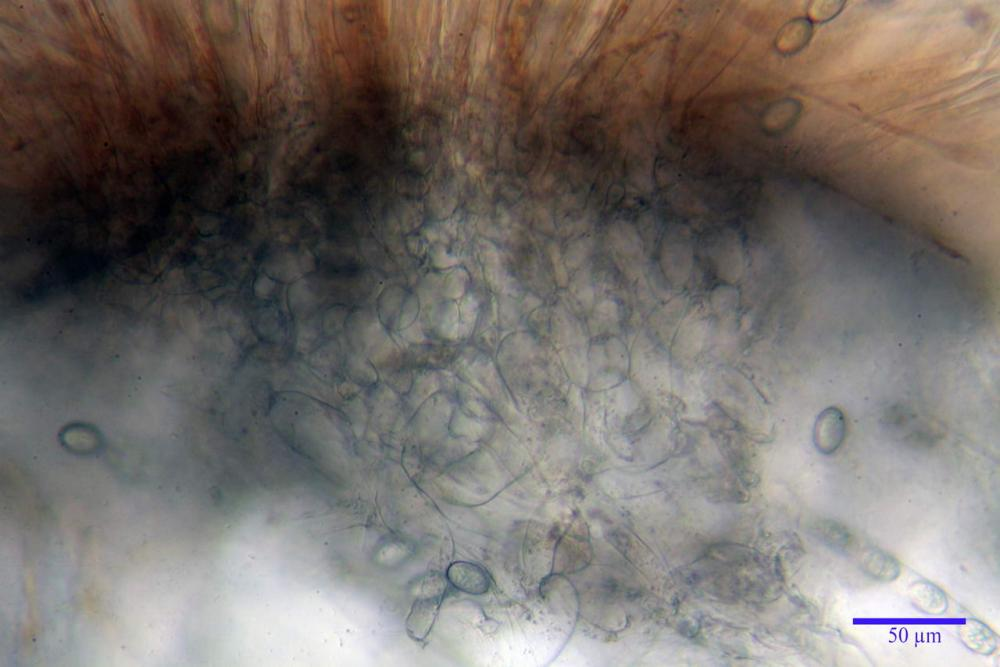 Scutellinia crinita 7493 32.jpg