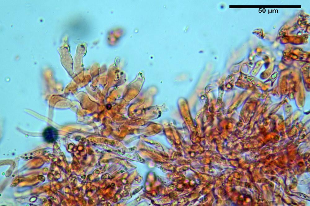 chaetocalathus craterellus 5169 18_resize.jpg