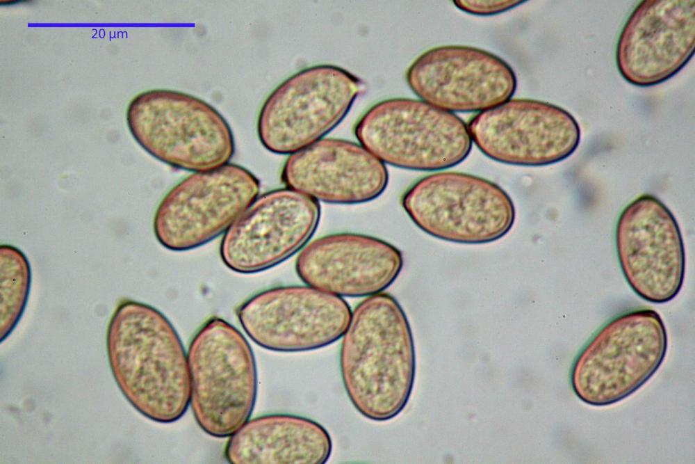 Volvopluteus gloiocephalus spore.jpg