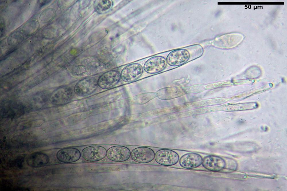 Scutellinia crinita 7493 40.jpg