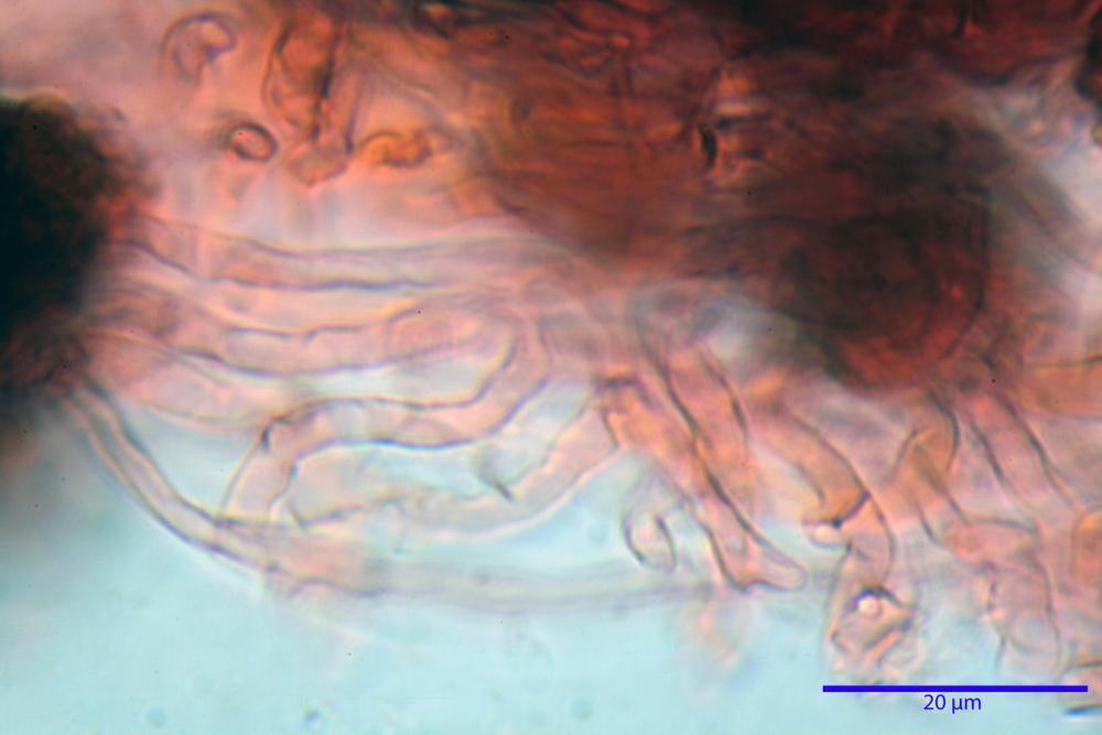scleroderma citrinum 5366 24.jpg
