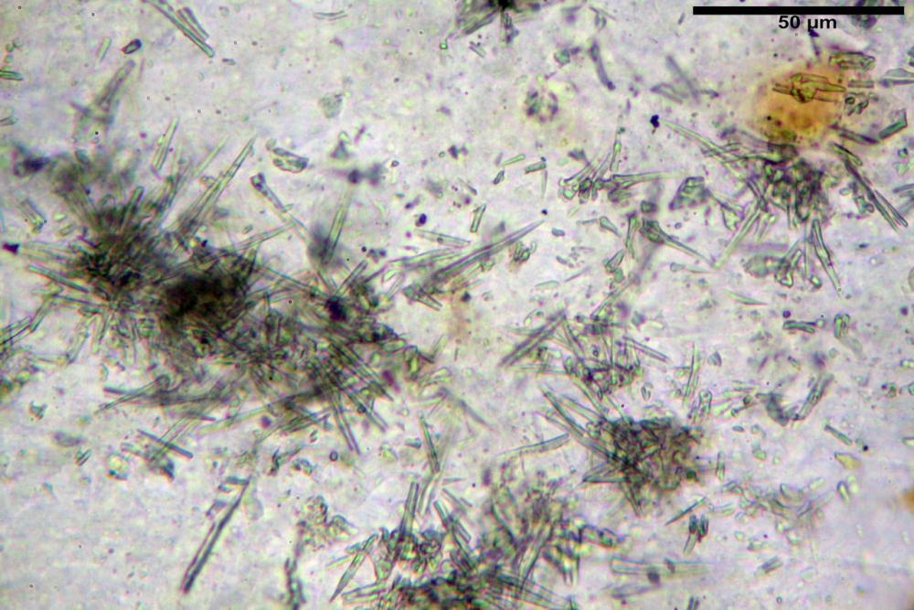 Stropharia coronilla acanthocystis rizomorfe miceliari.jpg