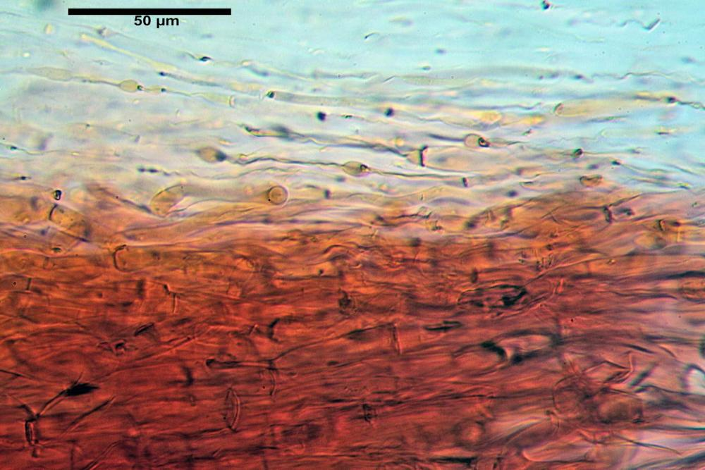 Volvopluteus gloiocephalus pileipellis in ixocute.jpg